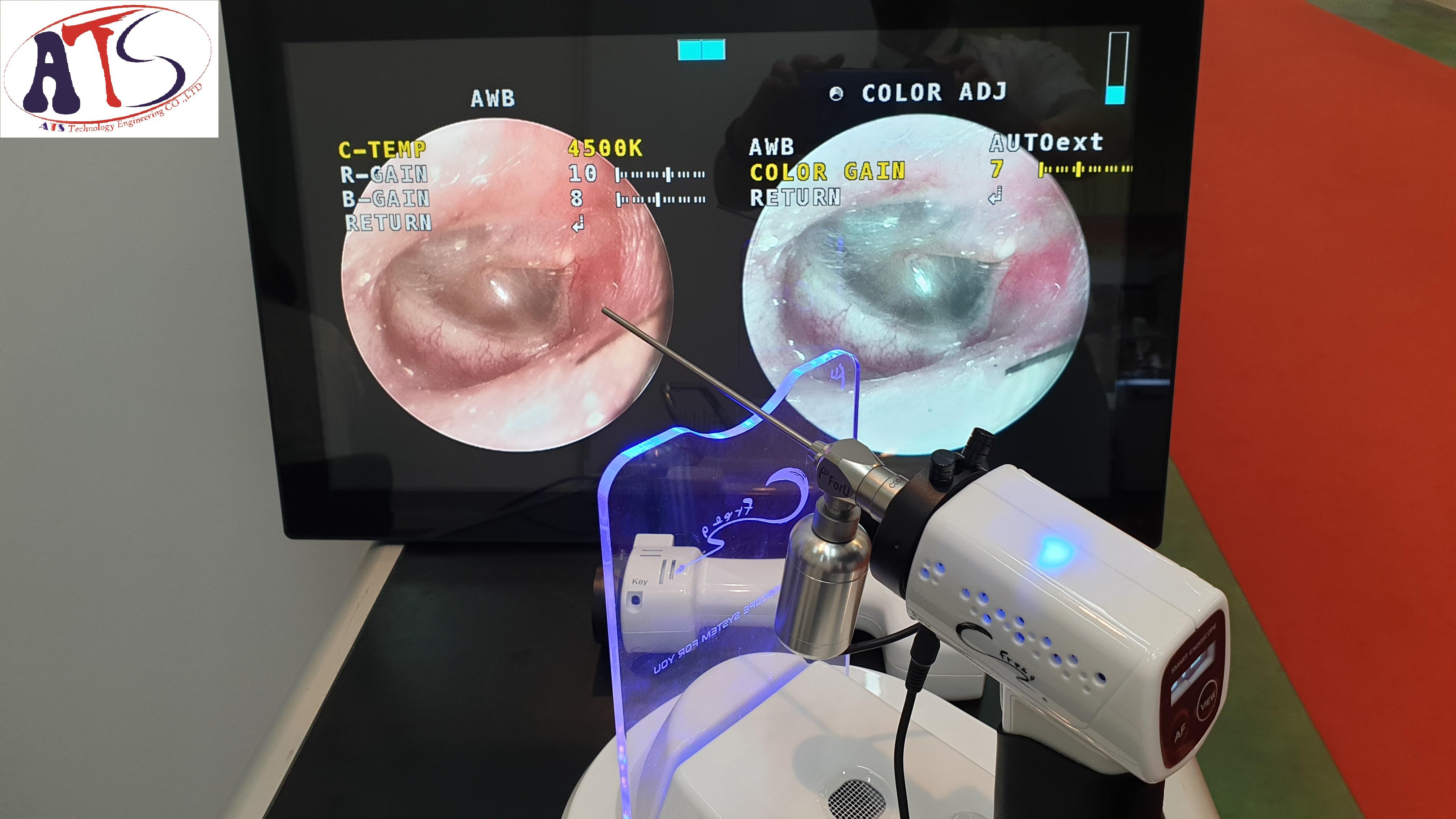 Hệ thống nội soi tai mũi họng không dây For U - Hàn Quốc