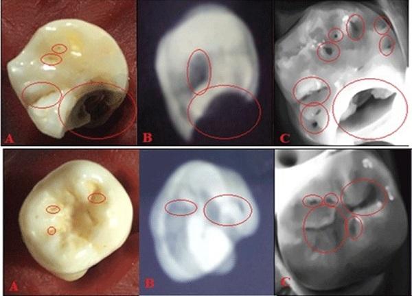 Nghiên cứu và chế tạo thành công máy phát hiện sâu răng sớm nhờ công nghệ ánh sáng cận hồng ngoại
